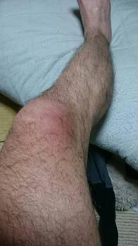 右膝腫れ.jpg